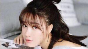 Una actriz china cuya nariz estaba necrótica después de una cirugía plástica.